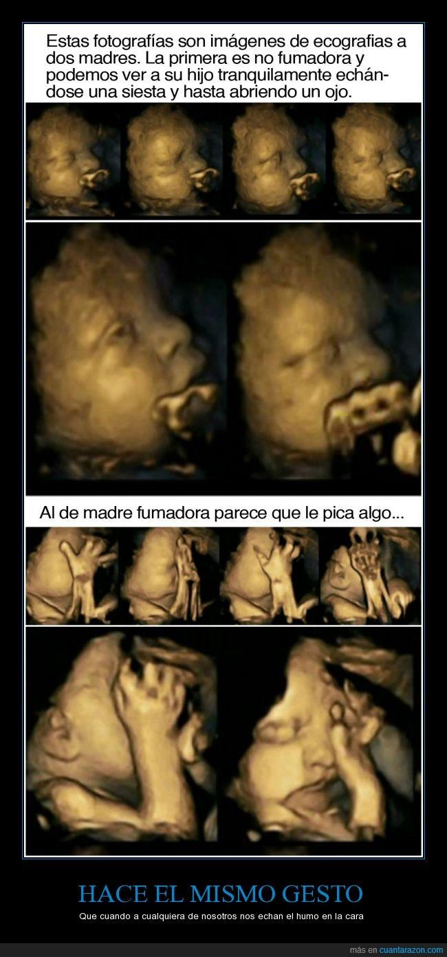 bebe,cara,cigarro,ecografia,feto,fumar,humo,madre,niño,ojos,pica,tabaco
