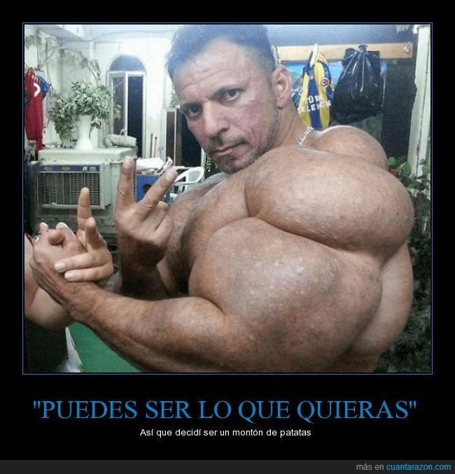 asco,brazo,culturista,dopado,fuerte,monstruo,musculo,synthol
