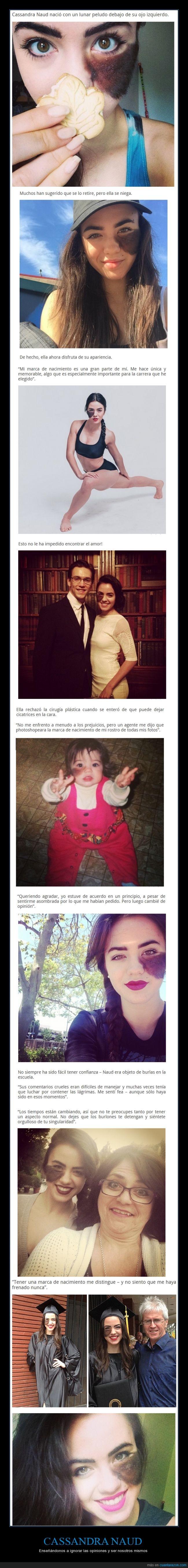 antojo,Cassandra Naud,circo viral,lunar,mancha,marca,nacimiento,peca,pelo,peluda,topo