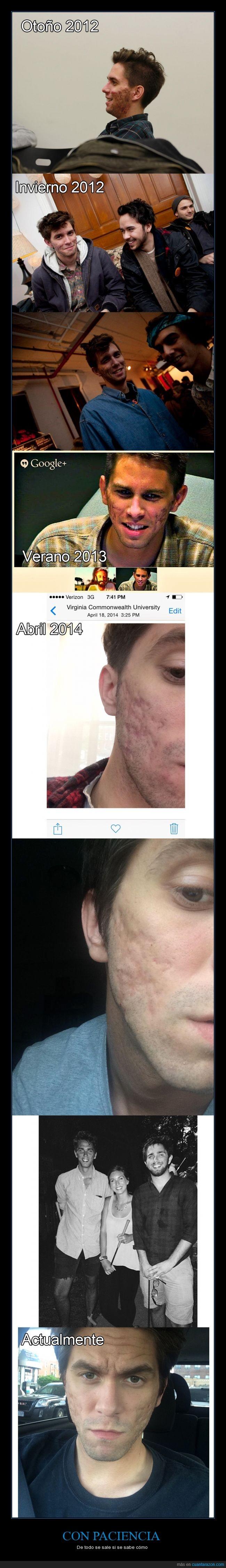 accutane,acné,cara,cicatriz,granos,severo,tratamiento