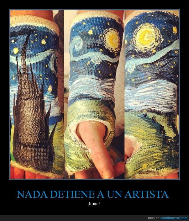 Artista,brazo,creatividad,escayola,hueso,pintura,romper,roto,van gogh,yeso