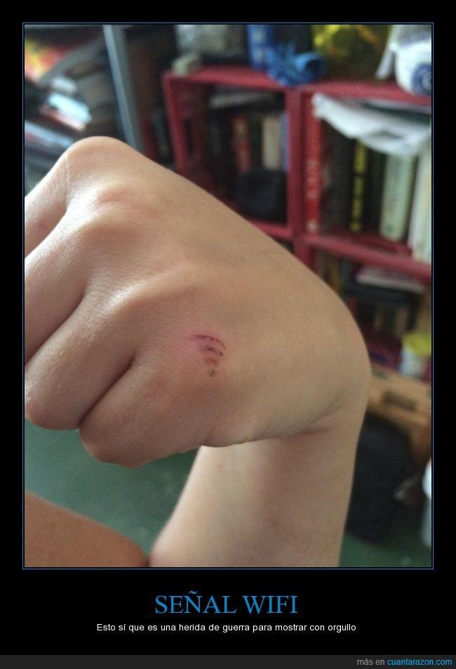 cortarse,herida,raspuña,sangre,wifi