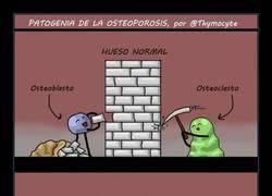 Enlace a Expliquemos la osteoporosis con un cómic