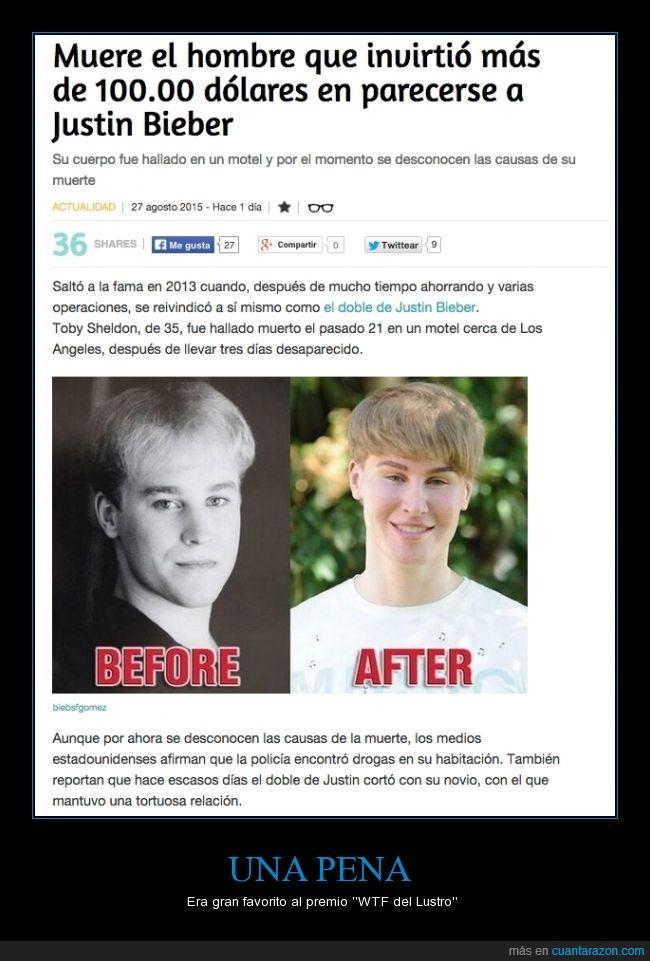 cirigía,Justin Bieber,morir,muere,operacion,Toby Sheldon