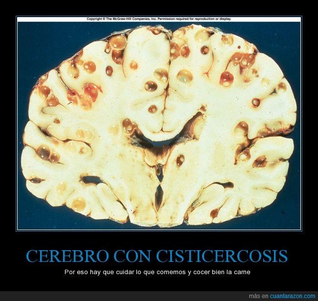 alimento,beber,bebida,cerebro,cisticercosis,comer,comida,cuidar