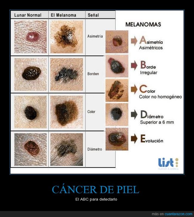 cáncer,lunares,melanoma,piel,prevención