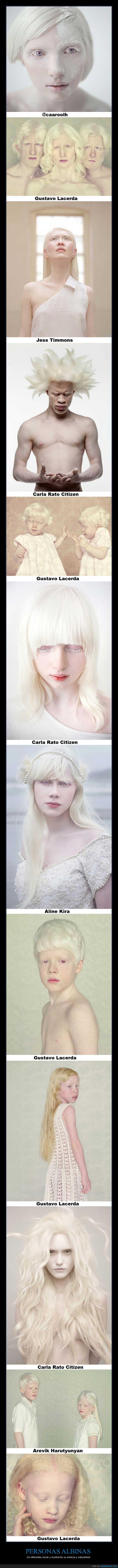 albinismo,albino,diferentes,fotos,hermoso,personas,razas