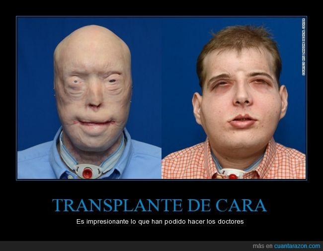 bombero,cara,facial,mascara,mascarilla,Patrick Hardison,quemar,transplante,vida,vivir