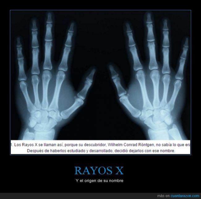 desconocido,nombre,origen,radiografía,rayos x
