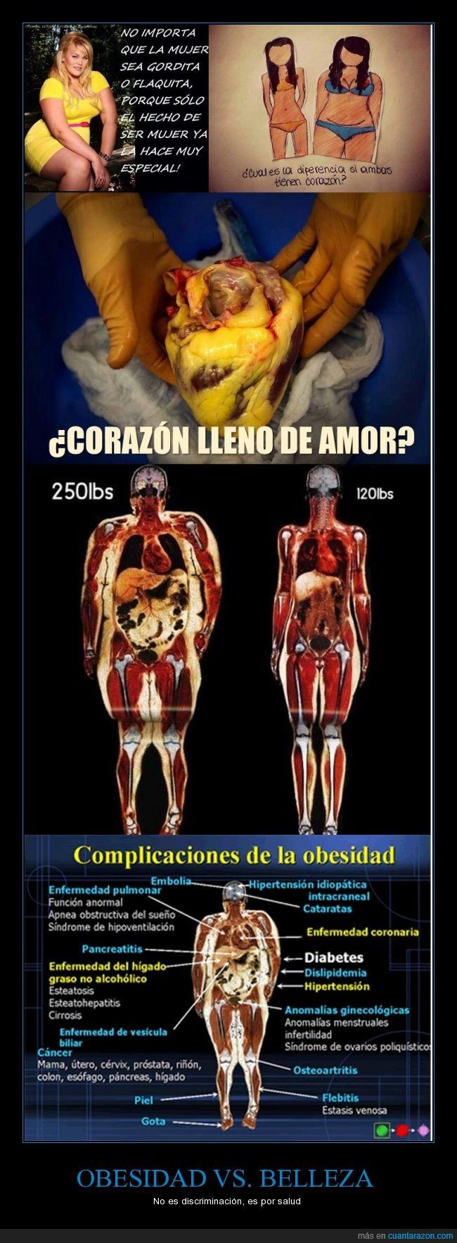 belleza,cuerpo humano,delgada,gordita,grasa,motivación,Obesidad,personas,salud