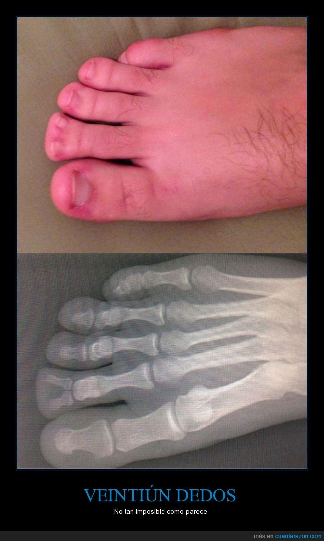 Bífido,dedos,pie,radiografía
