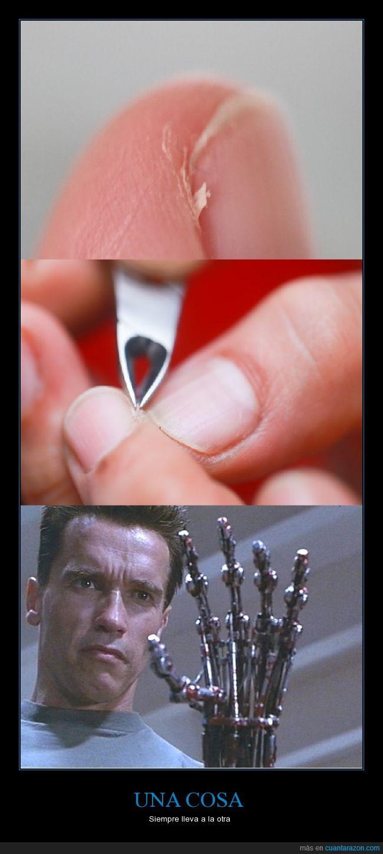 cueritos de la uñas D:,dolor,mano,terminator