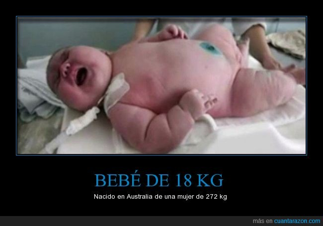 18,272,Bebe,gigante,madre,mastodonte,niño,obesa,obesidad,pedazo de crio