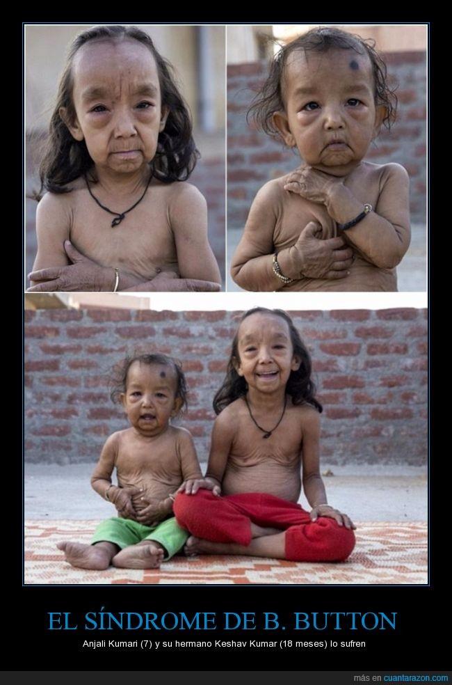 18 meses,anciano,Anjali Kumari,arruga,Benjamin,Button,hermano,India,indio,Keshav Kumar,niño,síndrome