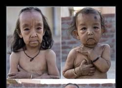 Enlace a Los hermanos indios con Síndrome de Benjamin Button REAL