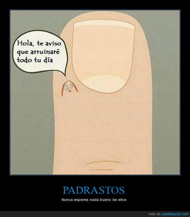 dedo,dolor,Padrastro