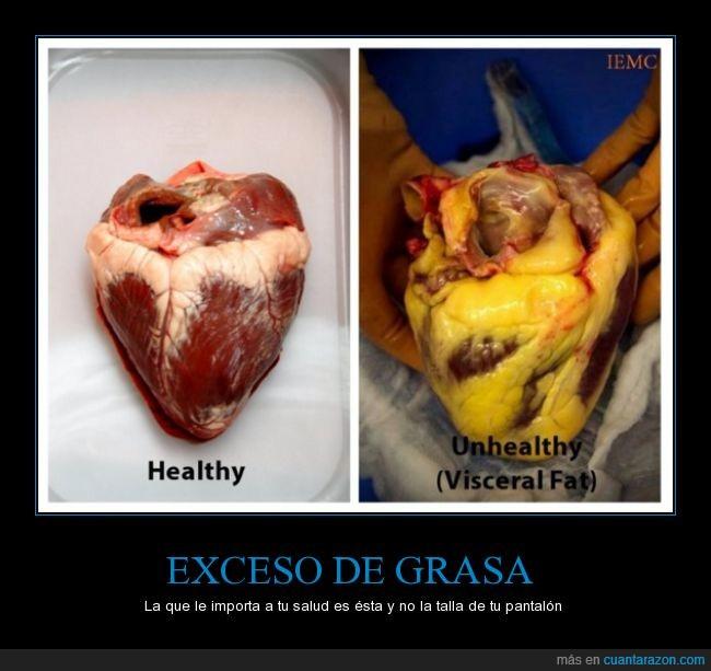 corazon,grasa,organo,pantalon,salud,sobrepeso,talla,visceral