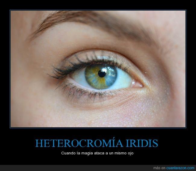 cambio,color,heterocromía,iridis,ojo,preciosa