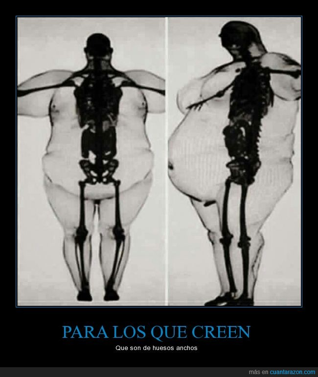 anchos,Huesos,obesidad,peso,sobrepeso
