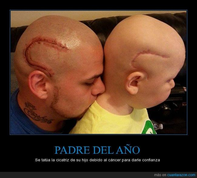 calvos,cáncer,cicatriz,hijo,padre