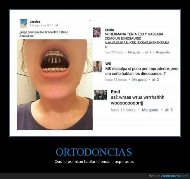 brackets,dinosaurio,hablar,hermana,ortodoncia