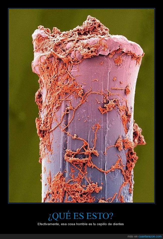 aqueroso,cepillo de dientes,microscopio,prefiero que mis dientes sucios que esto