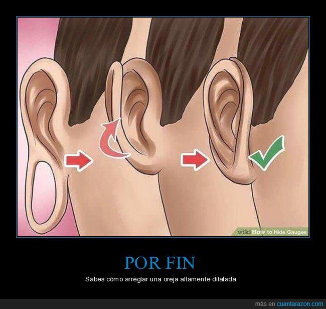 agujero,dilatación,oreja