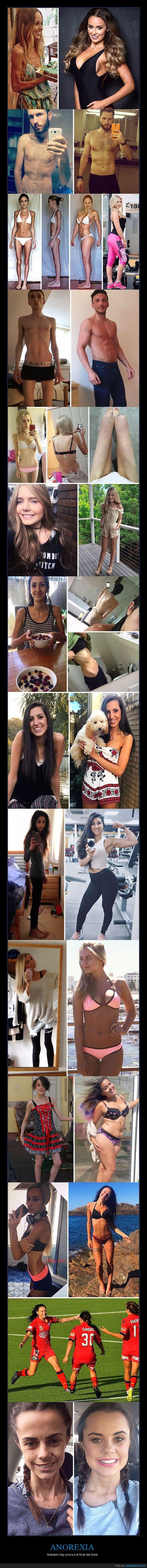 anorexia,superación,superar
