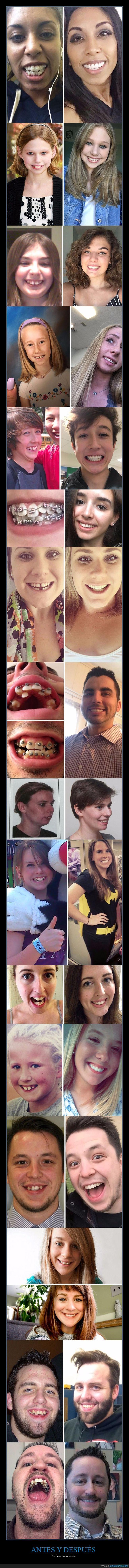 antes,dentadura,después,dientes,ortodoncia