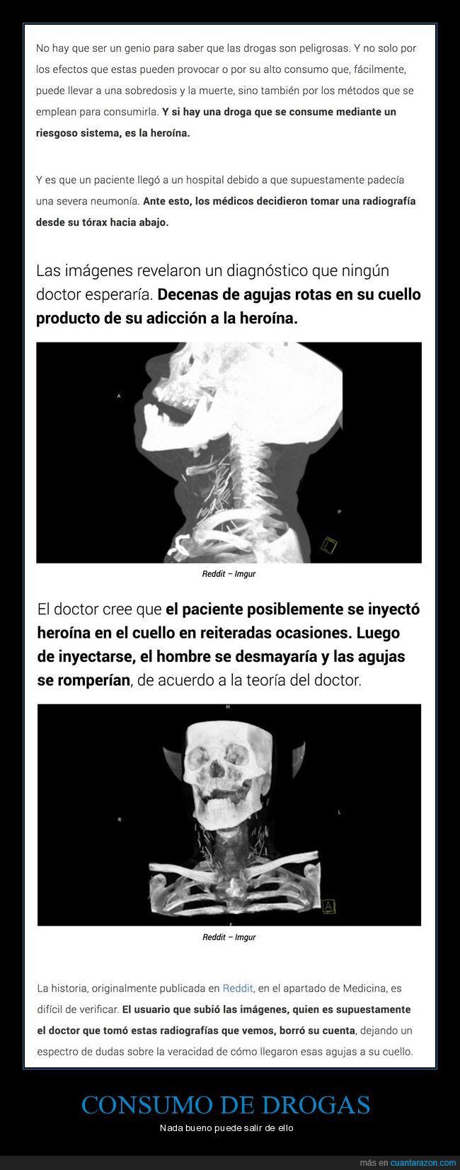 agujas,cuello,heroína,radiografía