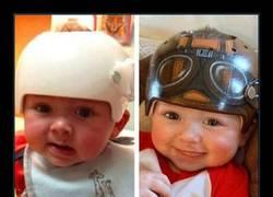 Enlace a Este artista pinta los cascos médicos de niños y son así de geniales