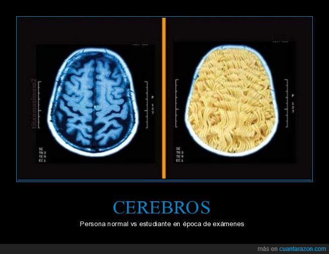 alimentación,cerebro,noodles