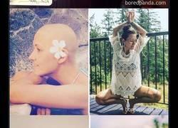 Enlace a 19 personas que demuestran que superar el cáncer es posible, y lo hacen con esta buena cara