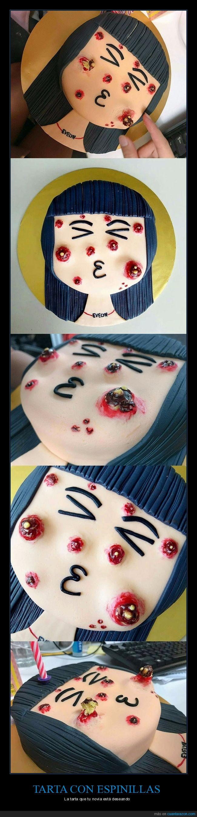 espinillas,explotar,tarta