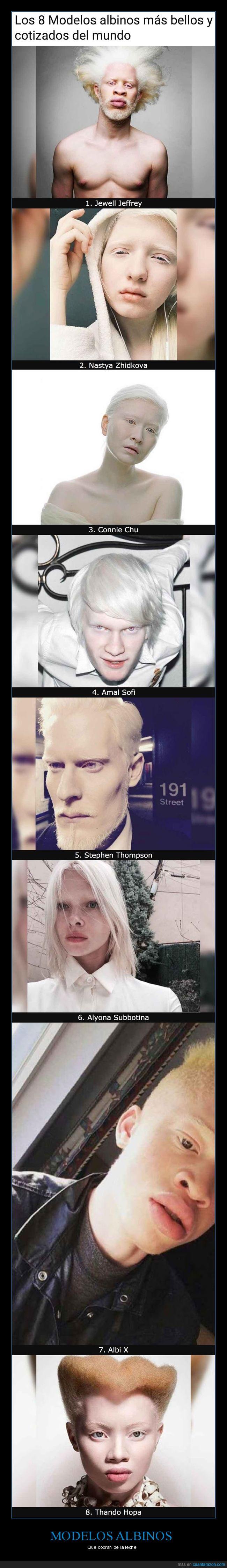 albinos,curiosidades,modelos