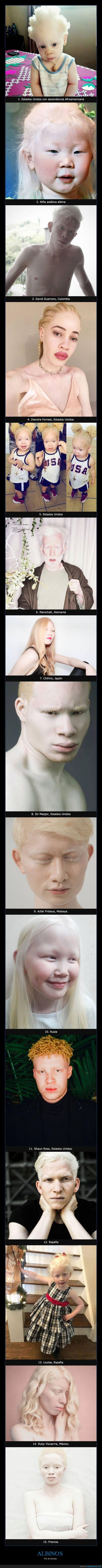 albinos,mundo,nacionalidades