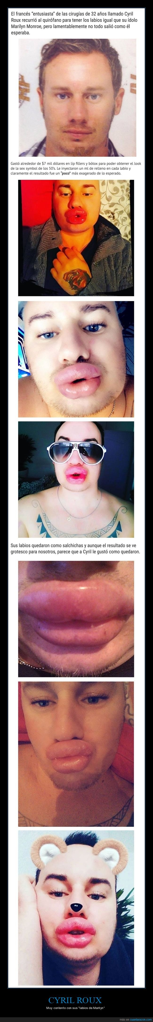 cyril roux,fail,labios,marilyn monroe,operación