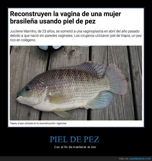 pez,piel,reconstrucción,vagina