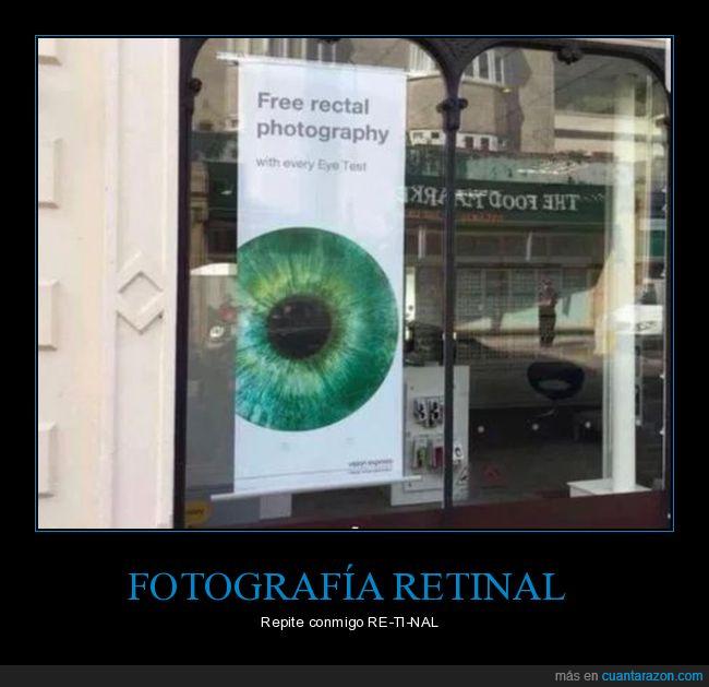 fails,fotografía rectal,fotografía retinal