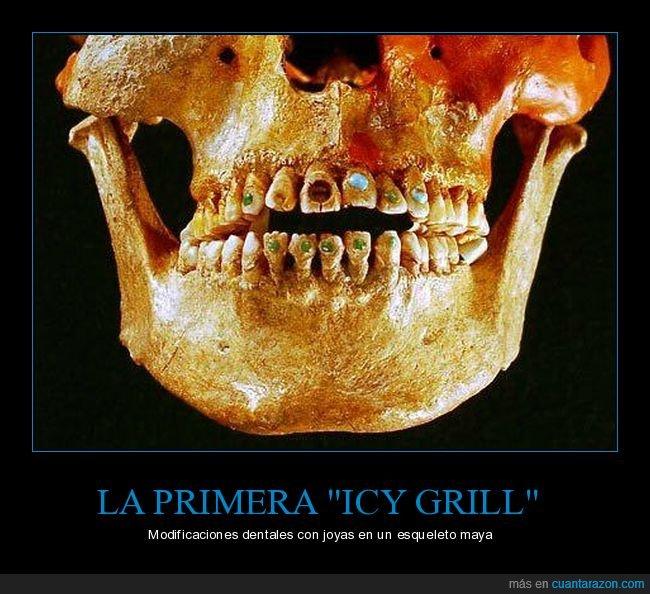 curiosidades,icy grill,joyas,modificaciones dentales