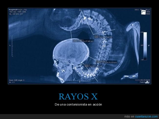 contorsionista,rayos x
