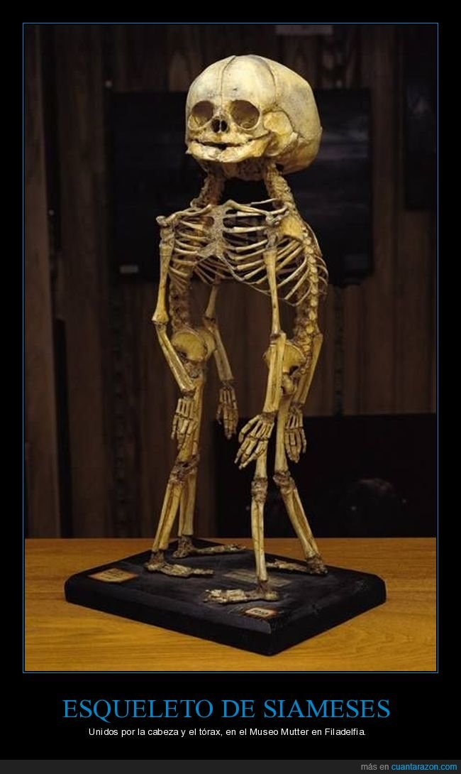 esqueleto,gemelos,siameses