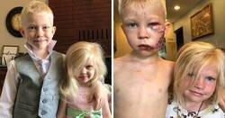 Enlace a Este héroe de 6 años salva a su hermana del ataque de un perro, recibe 90 puntos de sutura y alabanzas de los Vengadores