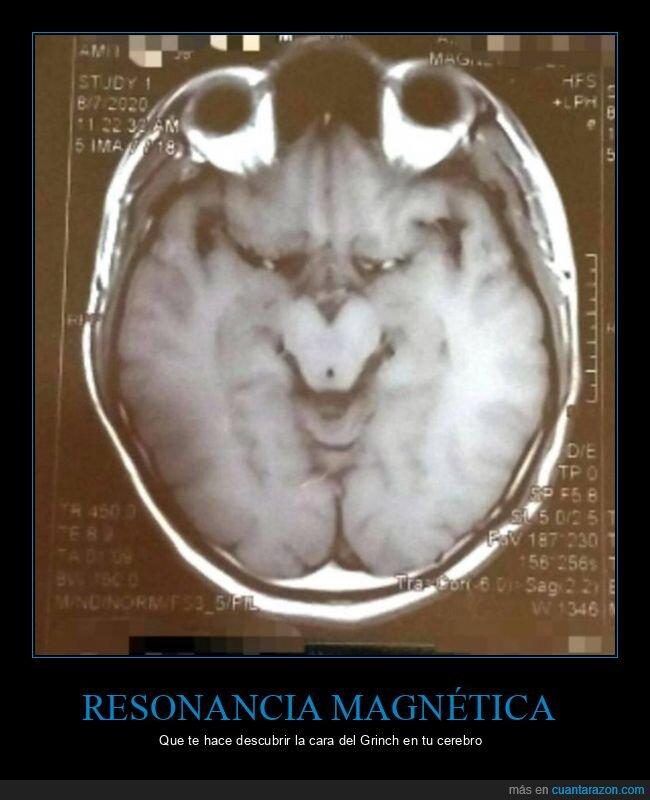 cerebro,grinch,parecidos,wtf