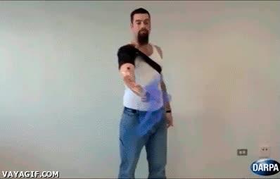 Enlace a Prótesis capaz de coordinar movimientos naturales del brazo