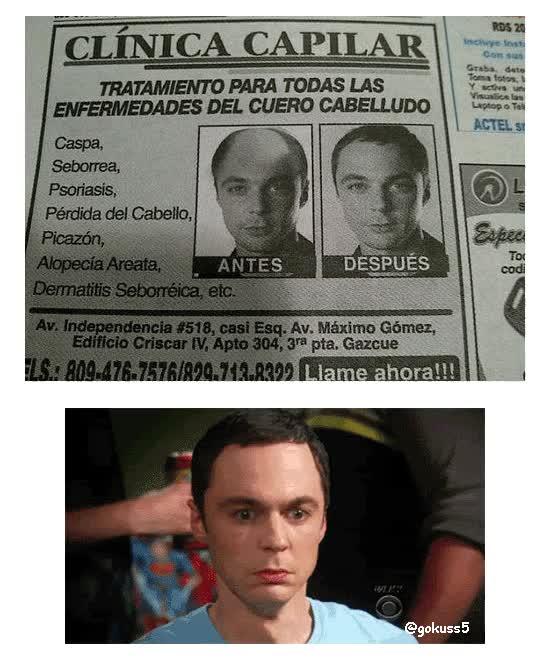 Enlace a Sheldon y sus problemas de calvicie