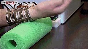 Enlace a Hombre tetrapléjico controla su brazo con un chip implantado en su cerebro