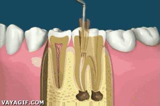 Enlace a Después de ver esto, aún querrás ir menos al dentista