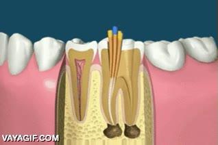 Enlace a Así es el procedimiento odontológico para poner un implante dental