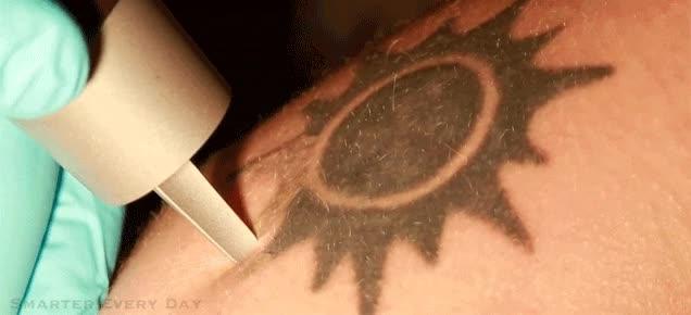 Enlace a Y así se borra un tatuaje